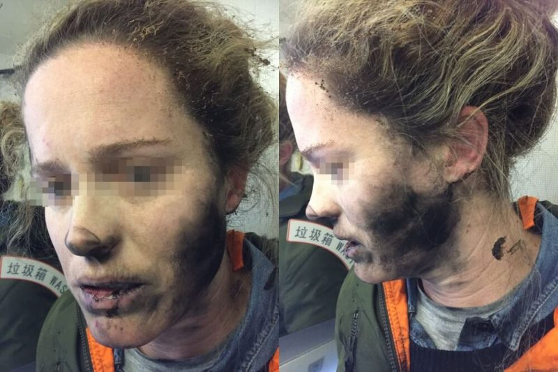 Bluetooth Headphones Explode on Airline Passenger's Neck